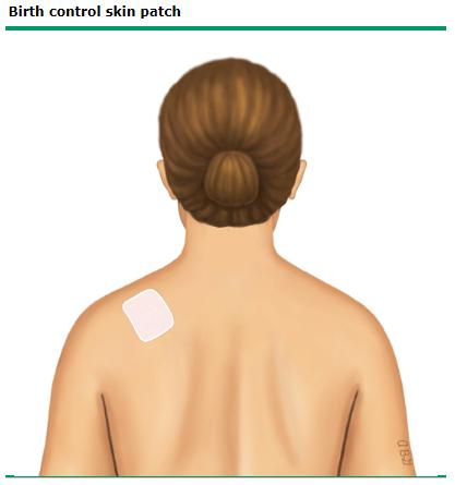 پچ پوستی جلوگیری از بارداری